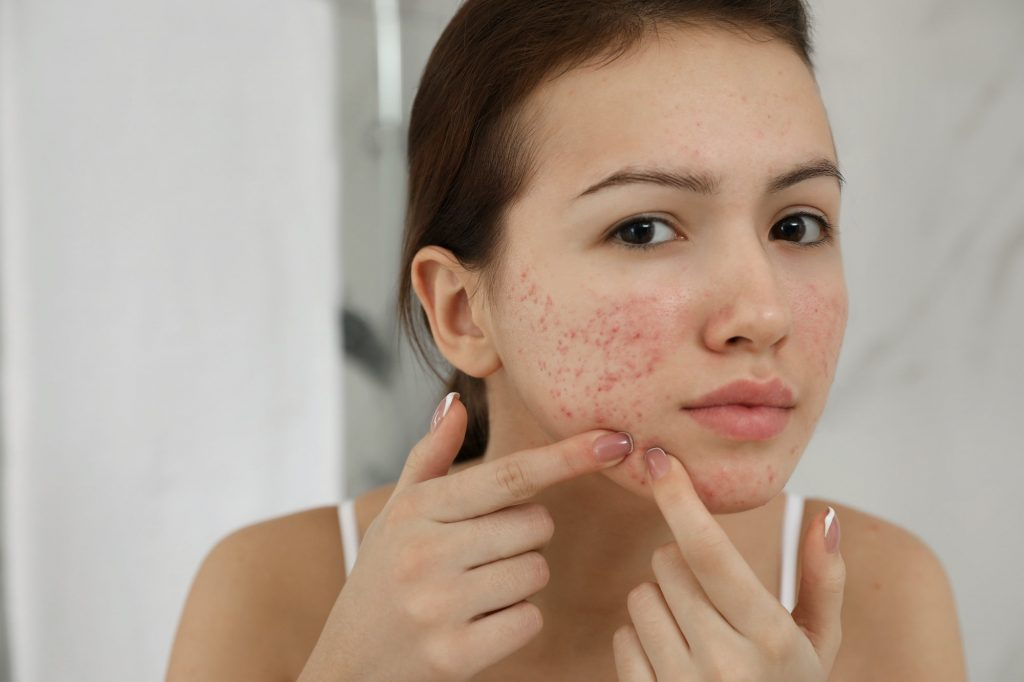 adolescente con acné