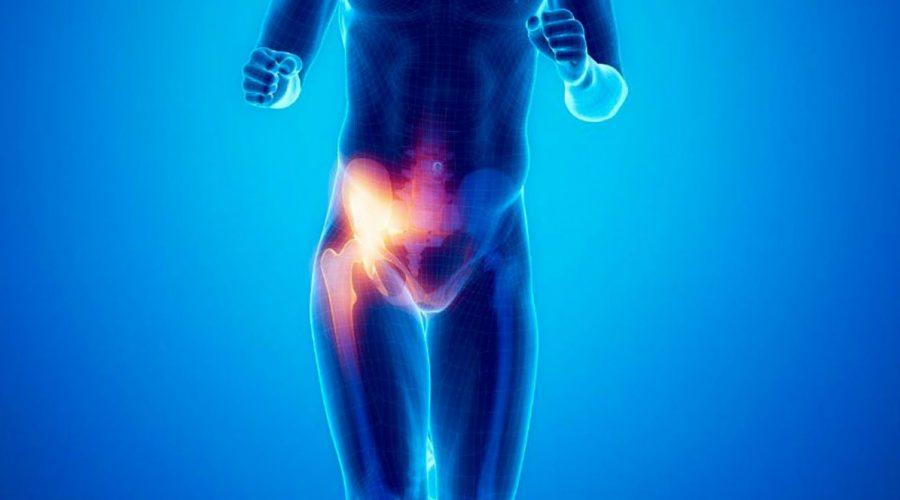 publagia hernia deportista como tratarla