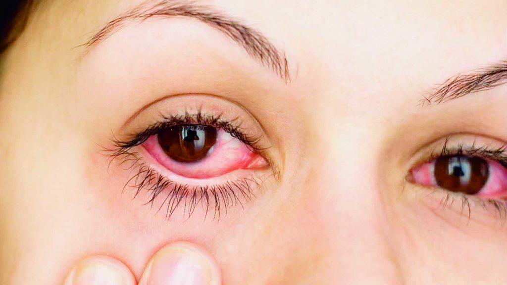 cuales enfermedades dan en los ojos