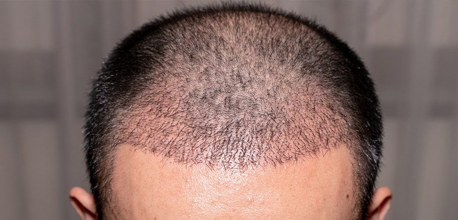 que es la alopecia androgénica