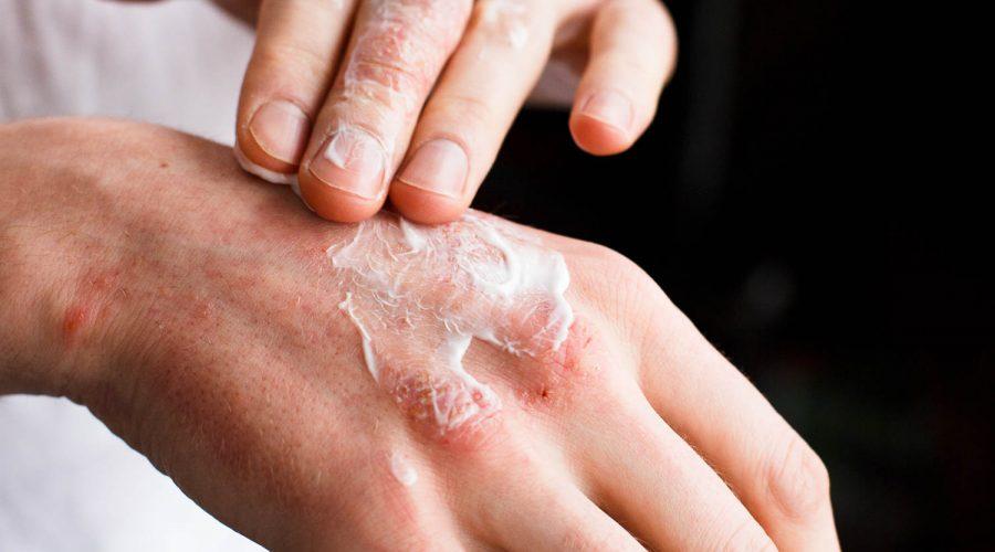 tipos de dermatitis